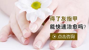 灰指甲的诊断方法有哪些
