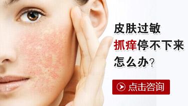 皮肤过敏的症状表现