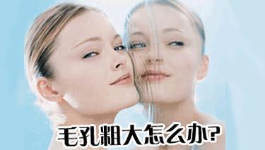 女性尖锐湿疣的症状表现?